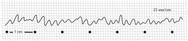 Как выглядит ЭКГ здорового сердца?