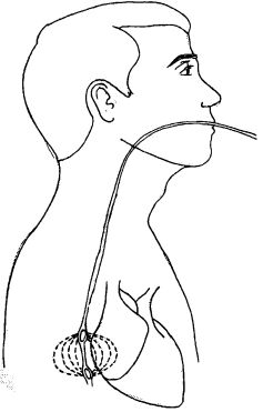 Глава 3. Методы исследования, применяемые в кардиологии