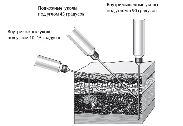 Рис.1. Виды инъекций