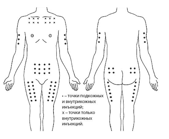 Рис.9. Области выполнения подкожных и внутрикожных инъекций