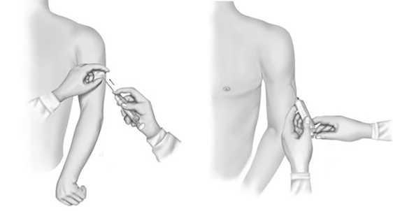 Рис.10. Безопасная техника подкожной инъекции
