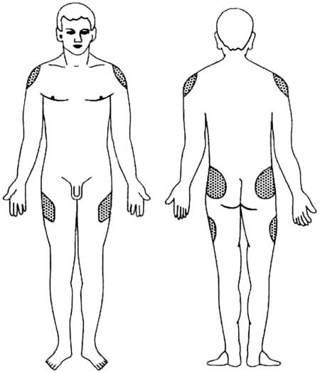 Рис.12. Области выполнения внутримышечной инъекции
