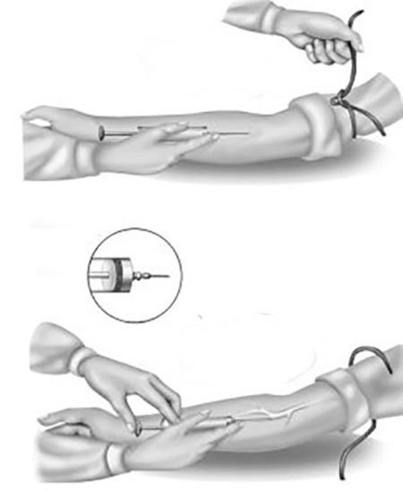 Рис.13. Техника внутривенной инъекции: а) введение инъекционной иглы параллельно вене; б) контроль правильности венепункции; в) снятие венозного жгута; г) внутривенное введение лекарства
