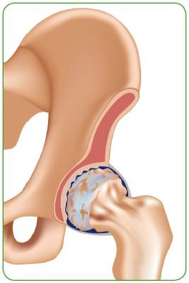 Артриты и артрозы