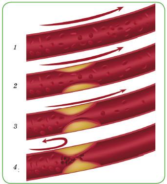 Стадии развития атеросклероза: 1 — нормальная артерия; 2 — начальная стадия; 3 — формирование атеросклеротической бляшки; 4 — закупорка артерии