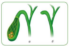 Желчные пути до (а) и после (б) холецистэктомии