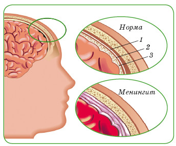 Оболочки головного мозга в норме и при воспалении: 1 — твердая; 2 — паутинная; 3 — мягкая