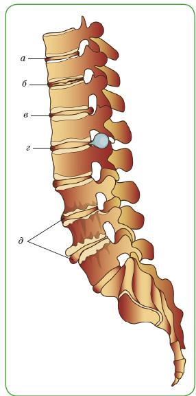 Заболевания межпозвонковых дисков: а — нормальный диск; б — дегенеративный диск; в — выпячивание (протрузия) диска; г — грыжа диска; д — костные разрастания (остеофиты)