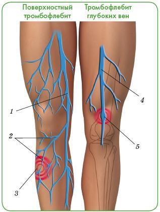 1 — большая подкожная вена; 2 — поверхностные вены; 3 — область воспаления; 4 — глубокая бедренная вена; 5 — тромб