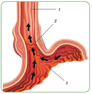 1 — пищевод; 2 — заброс желудочного сока в пищевод; 3 — желудок