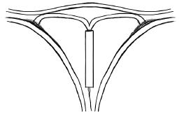 Внутриматочная спираль – это способ откладывания зачатия или способ получить воспаление органов малого таза?