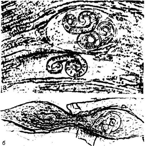 Трихинеллы