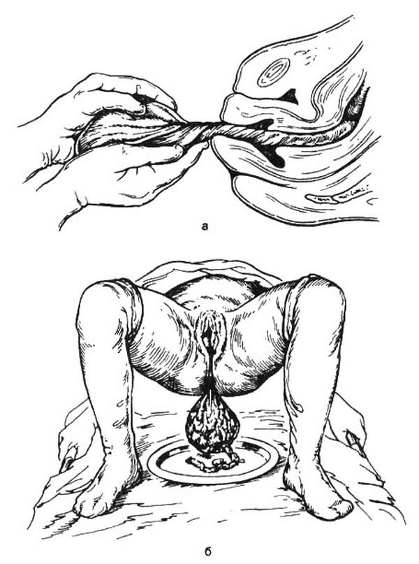 Ведение родов