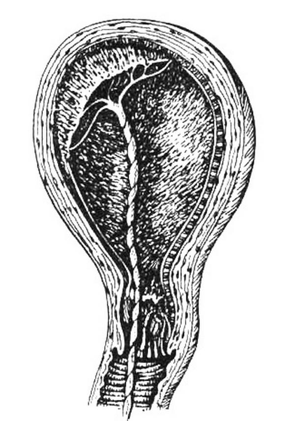 Патология послеродового периода