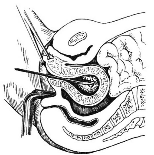 Искусственный аборт