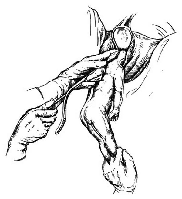 Вакуум экстракция плода показания