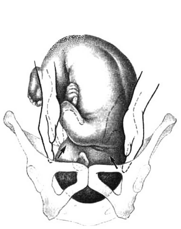 Обследование беременной