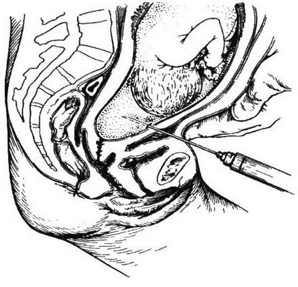 Зрелые крупным планом раздолбанные промежности телок ебут связанную ебет