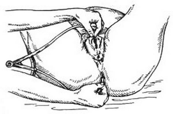 Строение женского таза с акушерской точки зрения