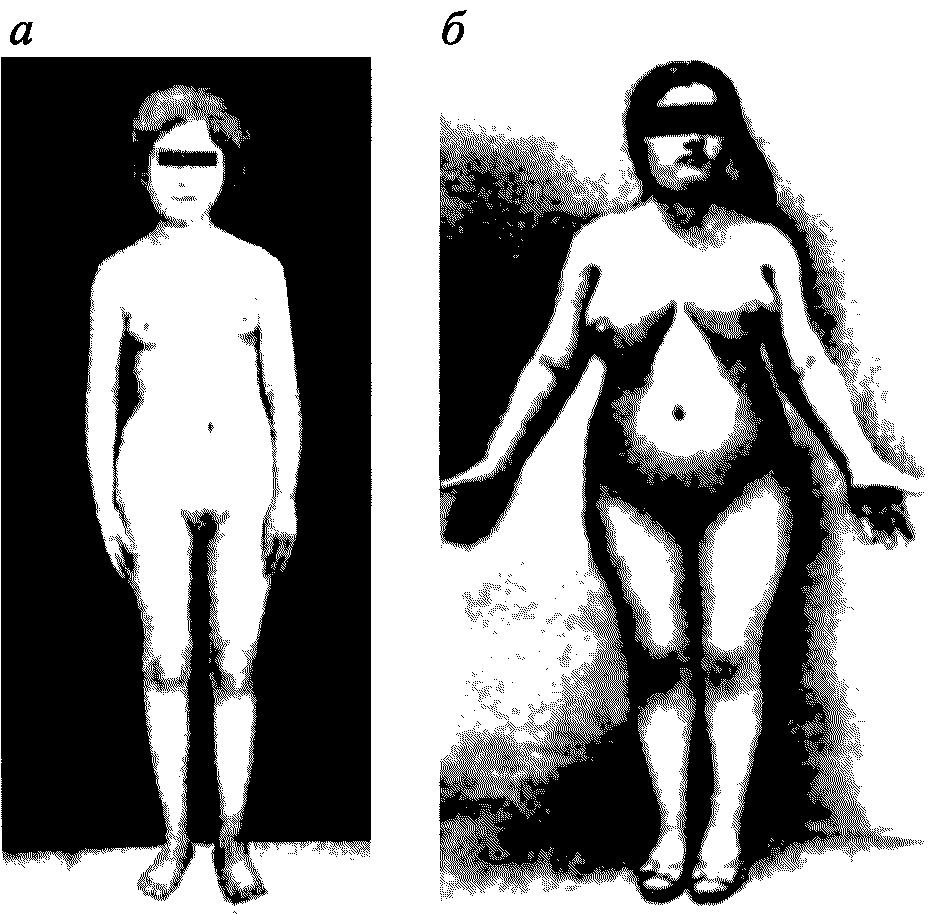 фото киска в половое созревание жълтата