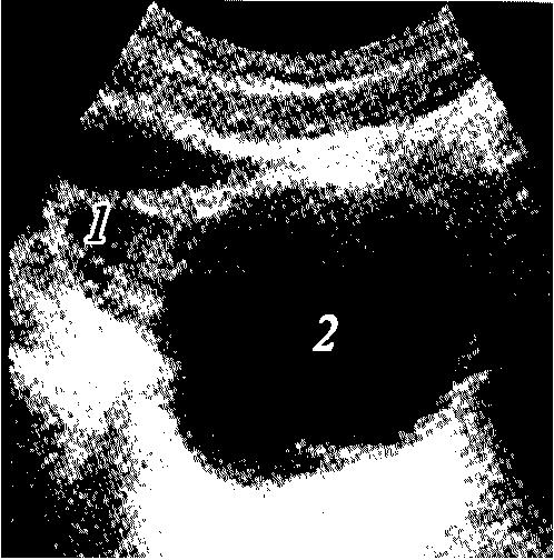 Рис. 8.22.