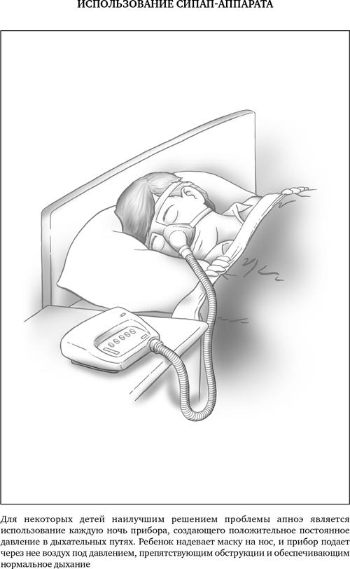 Лечение обструктивного апноэ сна