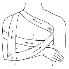 Бинтовые повязки