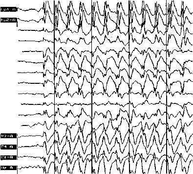Книги по эпилепсии