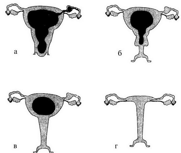 Виды и формы женских половых губ