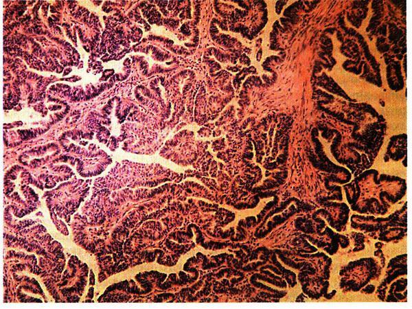 Доброкачественные опухоли яичников: причины, симптомы и лечение