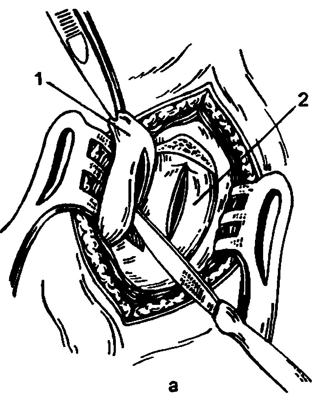 Патология слезоотеодящего аппарата