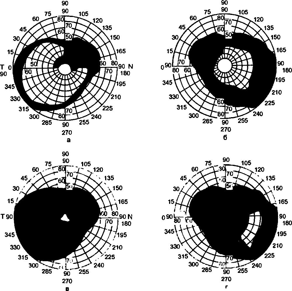 Особенности глаукомной оптической нейропатии