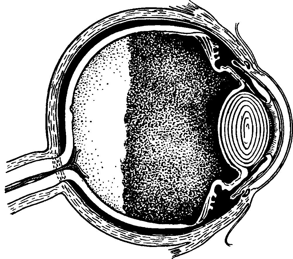 Первичная закрытоугольная глаукома