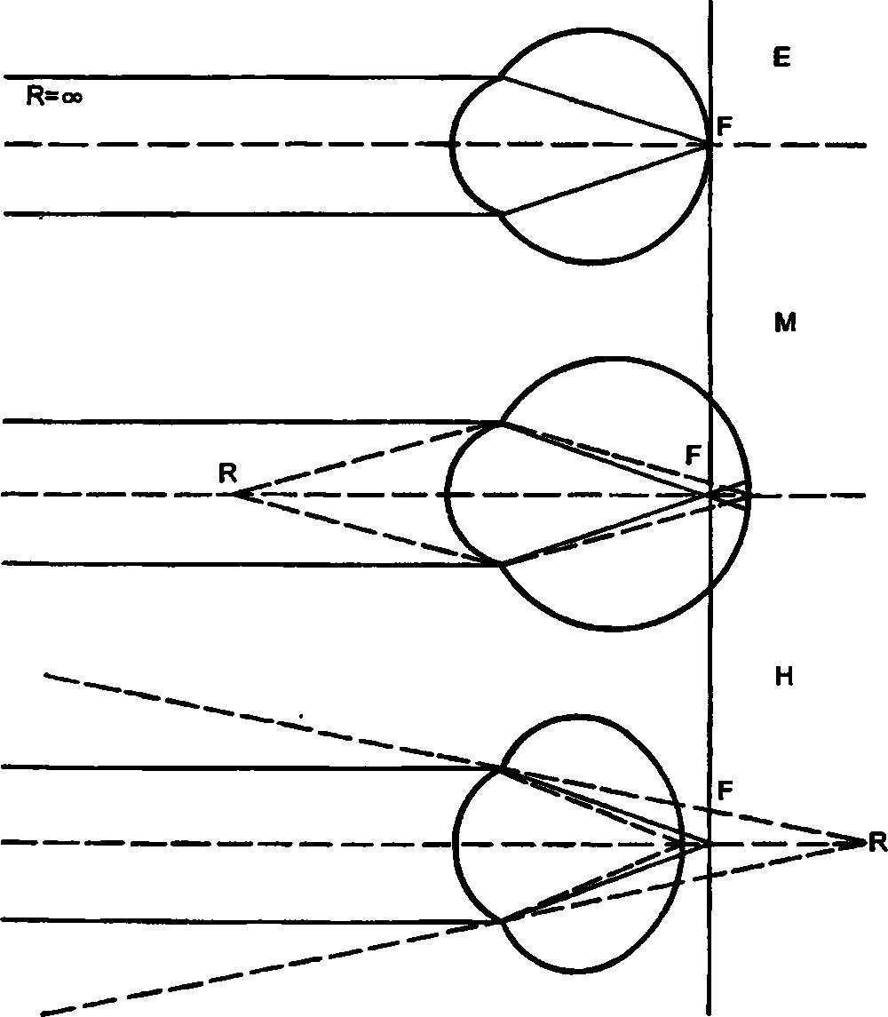 Статическая рефракция глаза. Эмметропия и аметропии