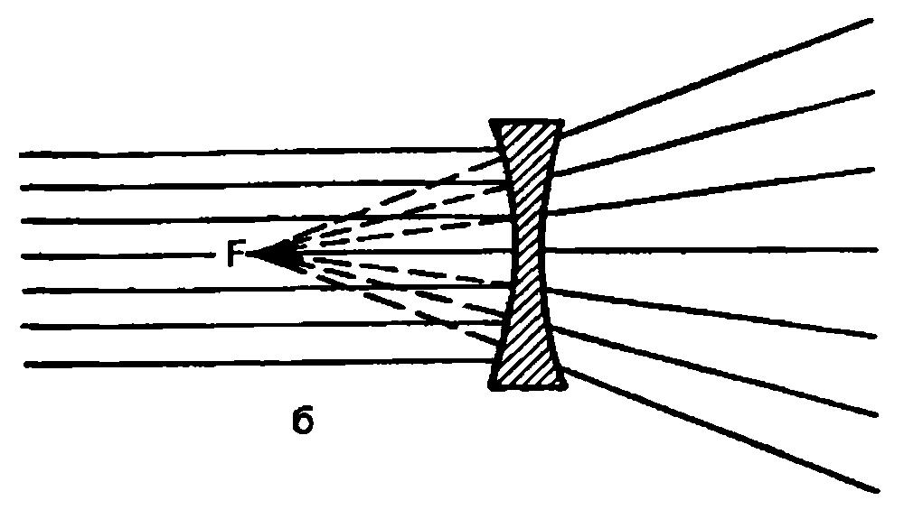 Коррекция аметропий с помощью очковых линз