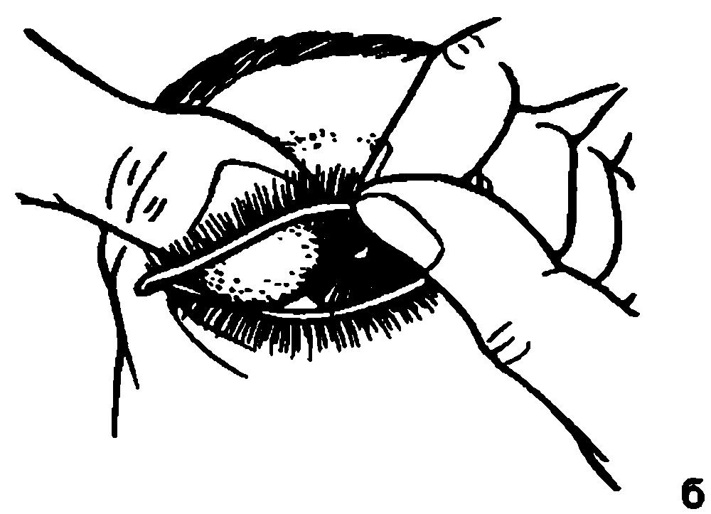 Наружный осмотр глаза и его придатков