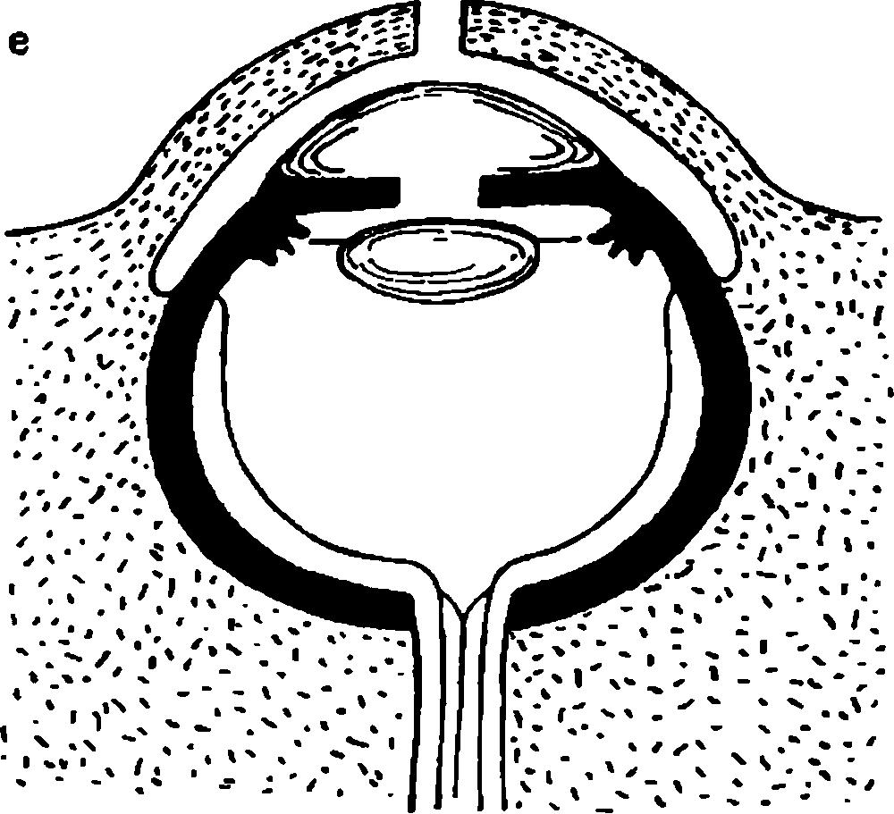 Развитие глаза в филогенезе.