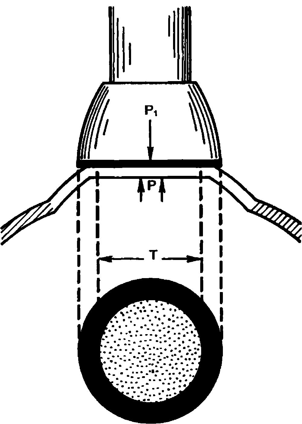 Аппланационная тонометрия.