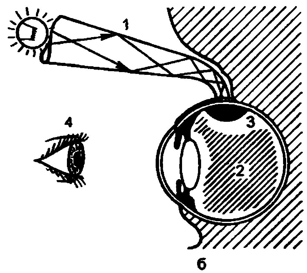 Трансиллюминация и диафаносколия глазного яблока