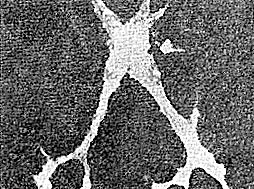 История шестая: Неожиданное – рядом, или Подострый склерозирующий панэнцефалит