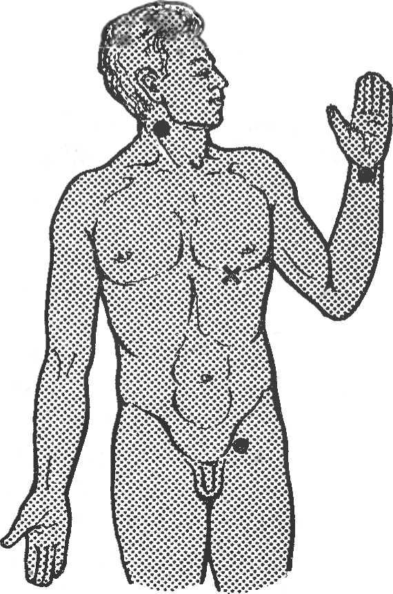 Рис. 1. Точки определения пульса на артериях и место выслушивания тонов сердца (отмечено крестиком).