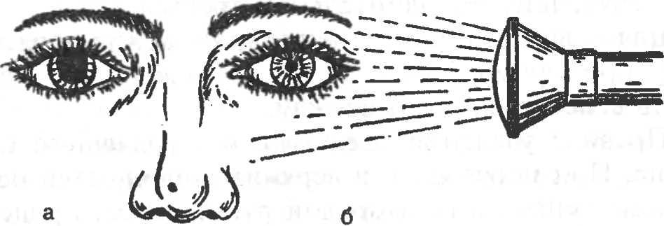 Рис. 3. Определение реакции зрачка на свет. а — зрачок до воздействия пучком света; б — после воздействия.