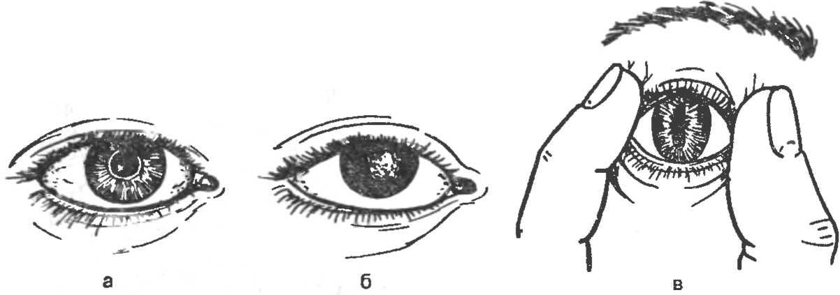 Рис. 4. Явные признаки смерти. а — глаз живого человека; б — помутнение роговицы у мертвого человека; в — симптом «кошачий глаз».