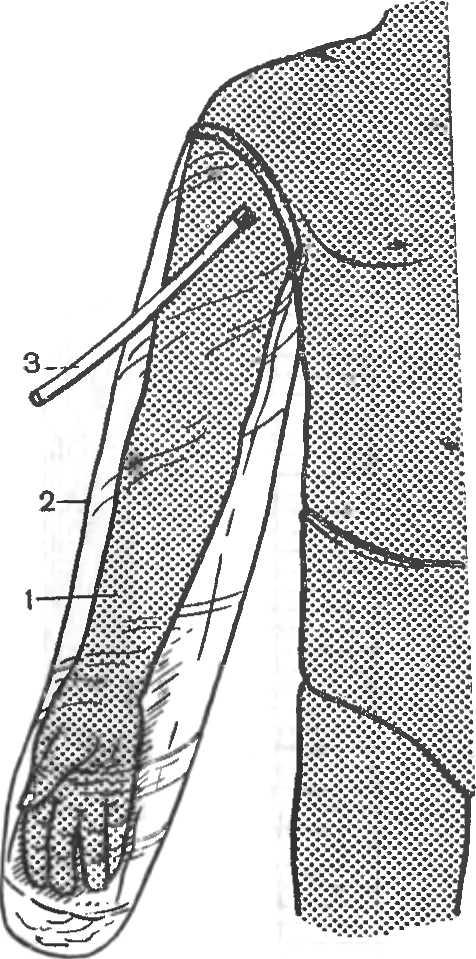 Рис. 7. Пневматическая (надувная) шина для иммобилизации верхней конечности.